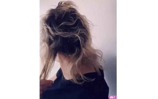 """Cabelo de Jessica após os procedimentos capilares. """"Disseram para eu raspar o cabelo por causa dos danos"""""""