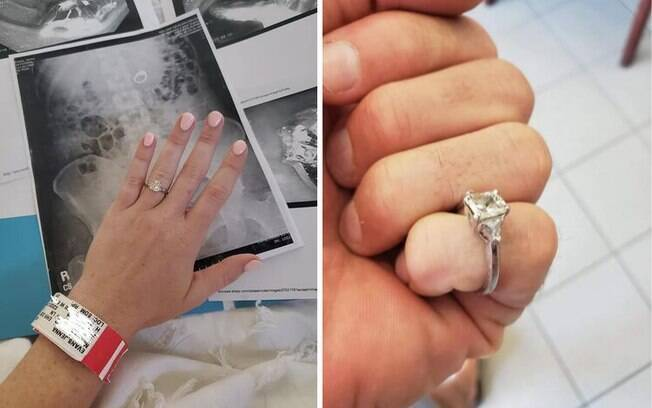 Jenna postou no Facebook a sequência de acontecimentos que a fizeram parar no hospital e se tornou viral
