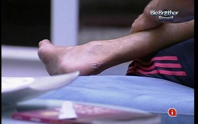 João Maurício passa spray cicatrizante no calcanhar