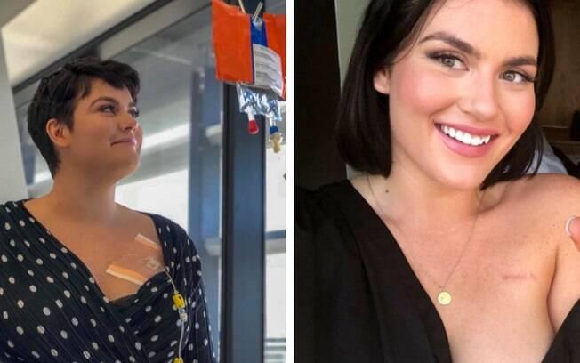 Bianca  venceu o câncer de mama e, agora, quer educar outras mulheres sobre a importância da realização do autoexame