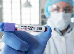 Campinas inicia testes de covid-19 para contactantes
