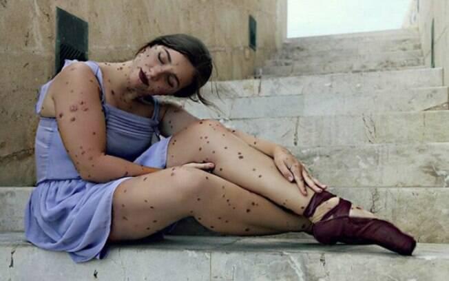 Bailarina espanhola Maria Isabel Olivieri, de 22 anos, aprendeu a amar as marcas que desenvolveu em todo o seu corpo