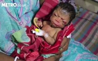 Bebê nascido na Índia se parece com um senhor de 80 anos