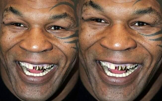 Myke Tyson: o lutador não esconde os dentes separados e coloca grills em alguns deles