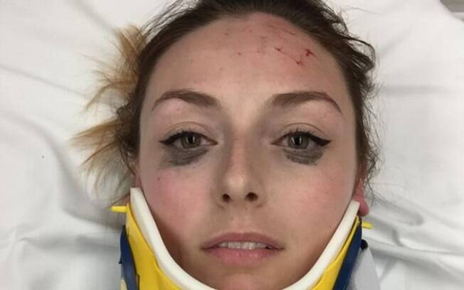 Shelby Pagan publicou a avaliação do delineador após sofrer um acidente de carro para mostrar a qualidade do produto