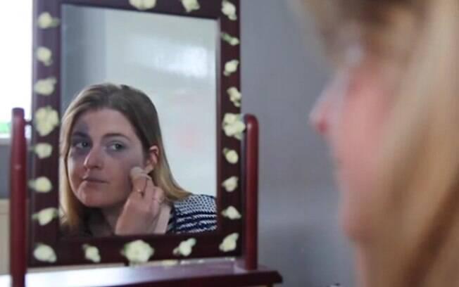 Adele Uden tenta esconder as manchas que surgiram em seu rosto com maquiagem para evitar comentários maldosos