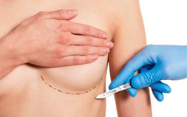 Implantes mamários são associados à câncer raro que já matou nove pessoas nos EUA