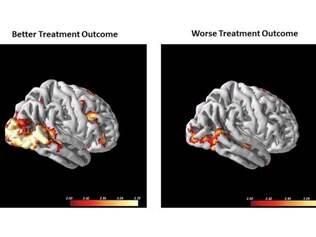 Previsão. Exame de ressonância magnética compara cérebro com boa resposta a tratamento (esq.) com outro que obteve pior resposta