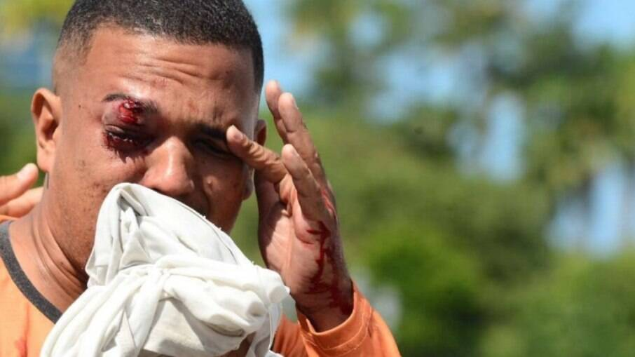 Jonas Correia de França foi atingido no olho por uma bala de borracha disparada pela polícia protesto no recife; ele não participava da manifestação