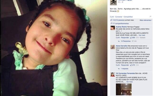 Fogaça sensibilizou todo mundo depois de revelar que sua filha é portadora de deficiência e precisa se alimentar por sonda