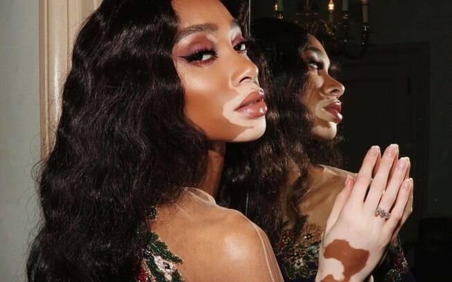 O vitiligo é uma condição que faz com que parte da pele fique despigmentada, causando contraste de cor