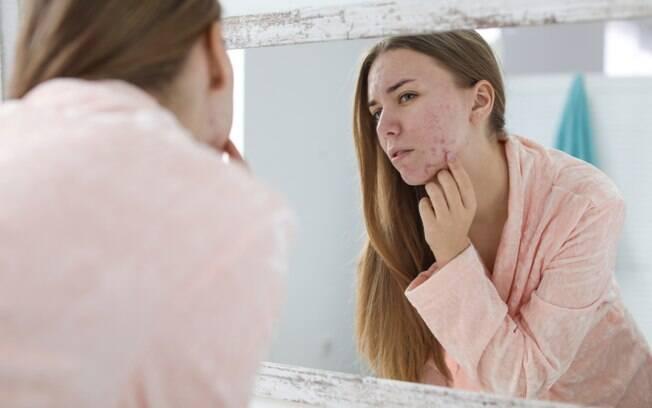 mulher com espinhas no rosto se olhando no espelho