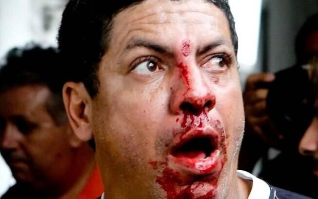 Torcedor do Santos exibe o rosto  ensanguentado após a confusão com os policiais, na  frente da Vila Belmiro