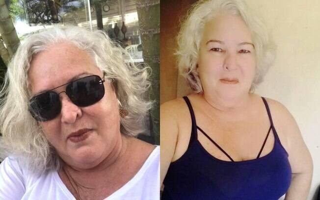 Após enfrentar um problema de saúde, Sílvia ficou com os cabelos brancos e, desde então, decidiu não pintá-los mais