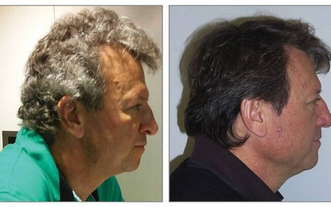Fato que muda a cor do cabelo dos pacientes ainda é um mistério para os pesquisadores envolvidos no experimento