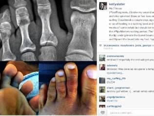 Slater publicou no seu Instagram a radiografia dos dedos quebrados