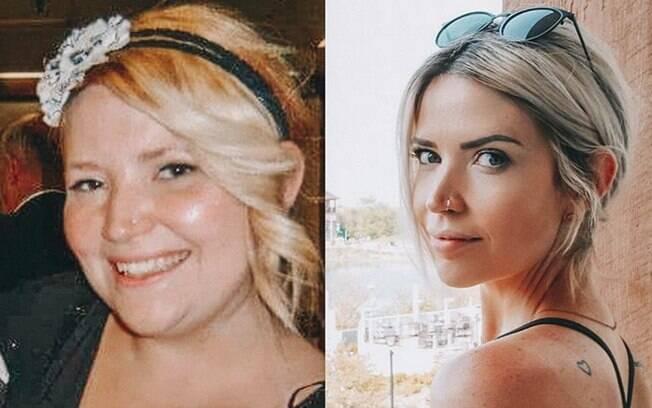 Sarah Nicole, de 33 anos, é mãe de três crianças e conseguiu perder mais de 45 kg com a ajuda de uma abdominoplastia
