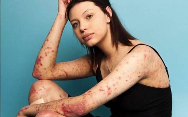 Modelo Maya Spencer-Berkeley nasceu com epidermiólise bolhosa, doença genética que provoca bolhas e feridas na pele