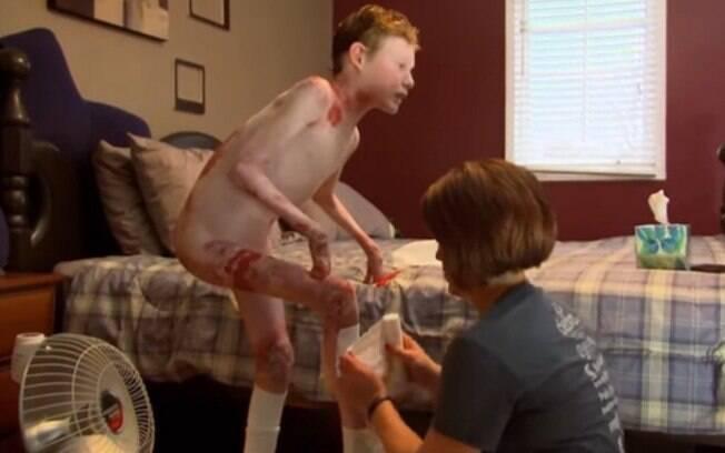Em um vídeo, o garoto mostra como é sua rotina e todos os cuidados que ele deve ter com a pele por conta das bolhas