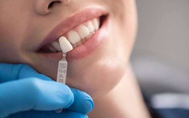 O enxerto ósseo pode ser necessário no momento de se fazer um implante dentário. Veja quando isso acontece e os tipos de enxertos