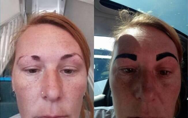 Colline disse ter 'ficado arrasada' por causa do procedimento que deixou suas sobrancelhas parecidas com os 'Angry Birds'