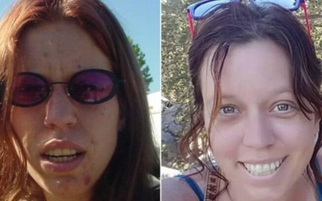 Americana se destacou na internet após mostrar fotos de antes e depois de recuperação de vício em drogas