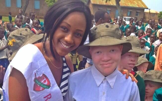A Miss Tanzânia 2012 Brigitte Lyimo em campanha de inclusão com crianças albinas na Tanzânia (arquivo). Foto: Tanzania Albinism Society