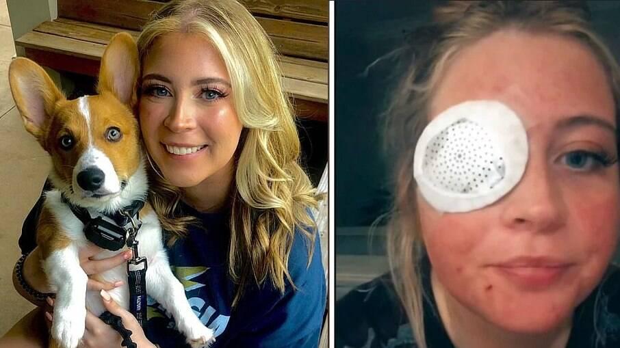 Kelsey Salmon, de 23 anos, perdeu sua pálpebra após um ataque de cachorro