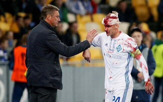 Domagoj Vida deixa o campo após cabeçada e é cumprimentado pelo treinador Alyaksandr Khatskevich