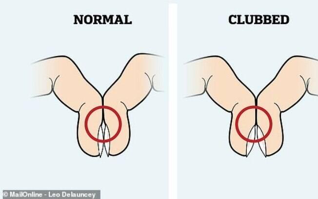 teste dos dedos