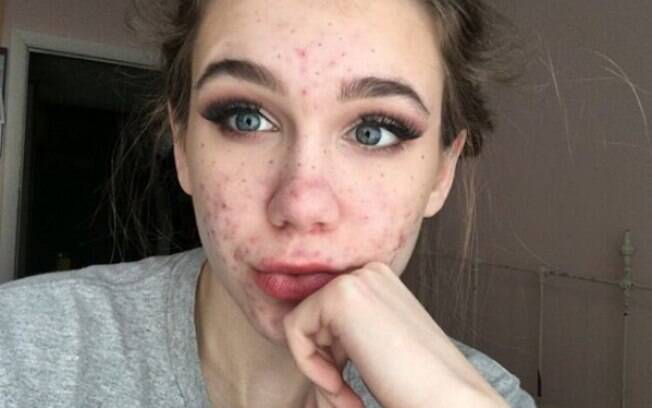 Emma O'Mahoney parou de usar maquiagem para cobrir a acne no rosto e passou a aceitar a beleza natural da pele