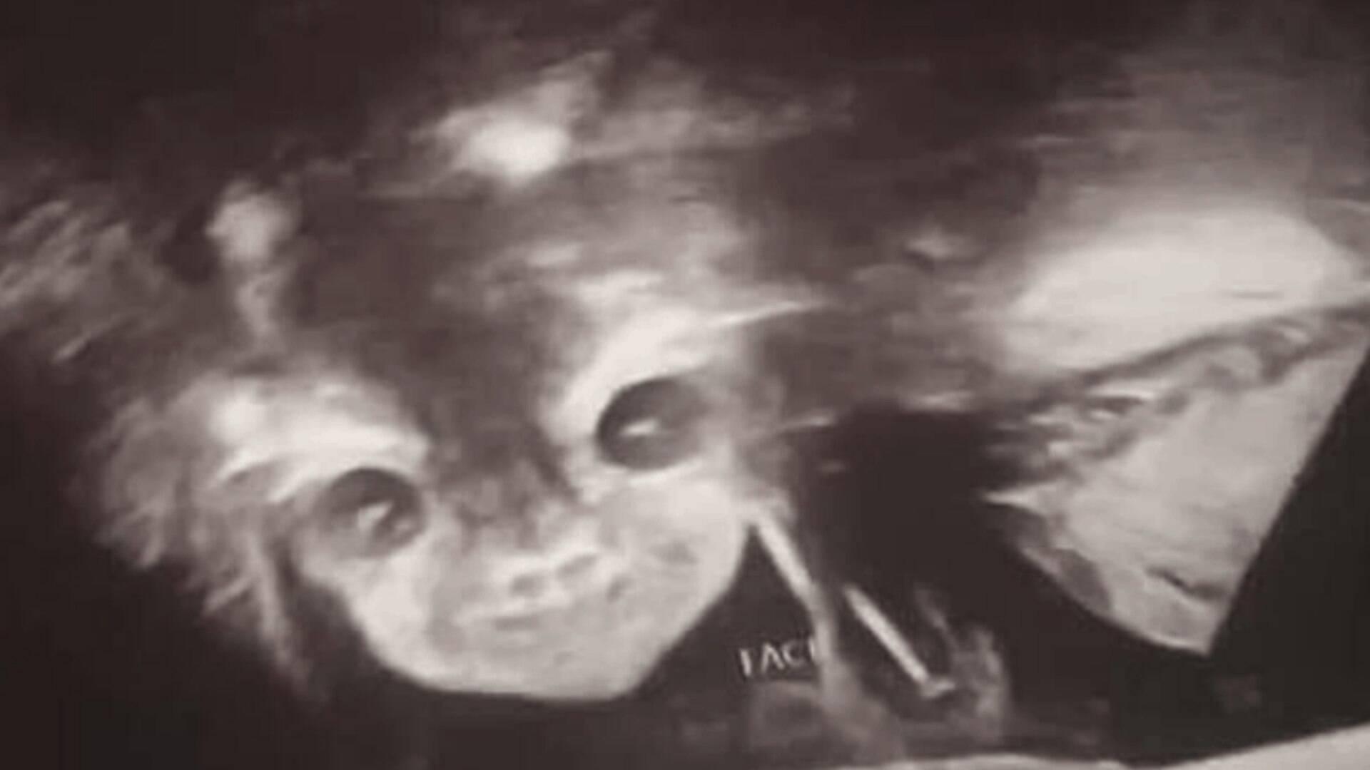 Mae Fica Assustada Ao Ver Bebe Demonio Sorrindo Em Ultrassom