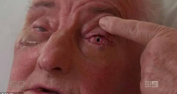 Idoso recupera a visão após implante de seu próprio dente no olho; entenda