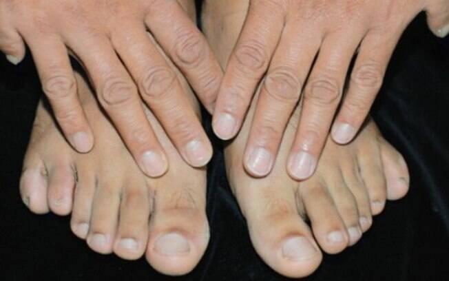 Polidactilia é ter mais de cinco dedos em cada uma das mãos ou pés