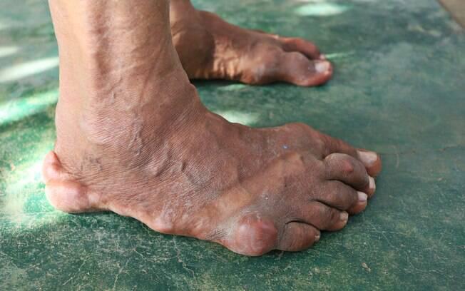 Gota é uma espécie de artrite que ocorre pelo excesso de ácido úrico nas articulações, causando dor e inflamações