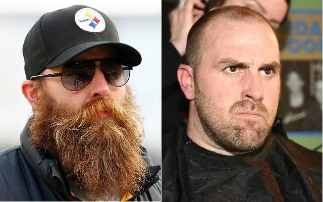 Brett Keisel em dezembro de 2014 (esquerda) e no início de fevereiro de 2015 (direita)