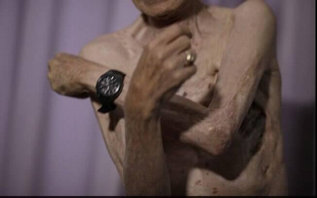 Taniguchi ainda não consegue mover completamente o braço esquerdo. Foto: Reprodução/Daily Mail