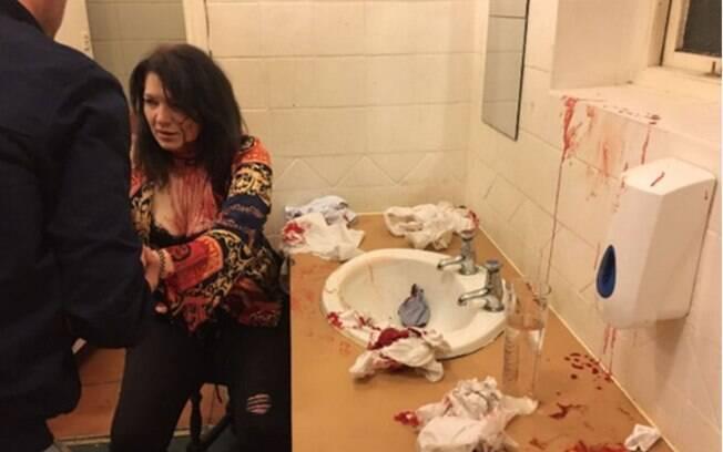 Anne diz ter sofrido ferimentos expostos e contusões na cabeça, sendo levada ao hospital tempo depois do ocorrido