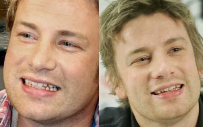 O chef de cozinha Jamie Oliver é outro famoso que optou por manter o sorriso como veio ao mundo