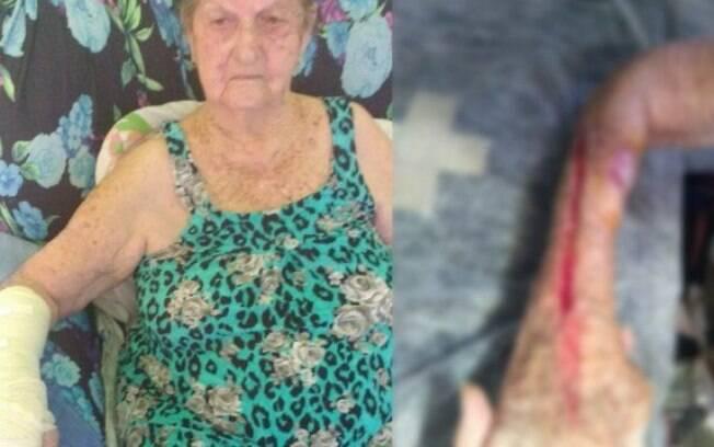 Dona Alda, 93 anos, teve o braço rasgado por profissional que ignorou reclamações de dor