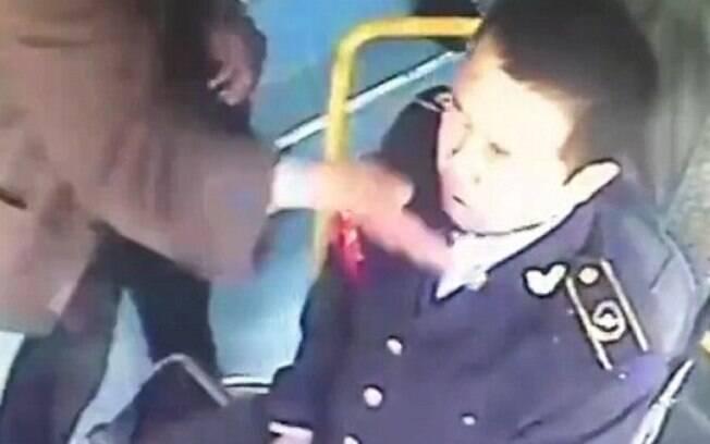 O motorista de ônibus Zhang precisou ser hospitalizado após receber tapas e ser mordido por um passageiro