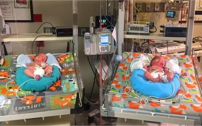 Um dos gêmeos nasceu em 2016 e o outro em 2017
