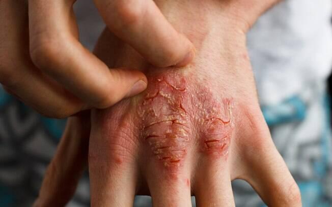 A remissão completa das lesões de pele, um dos sintomas da psoríase, é a principal expectativa para 73% dos pacientes entrevistados