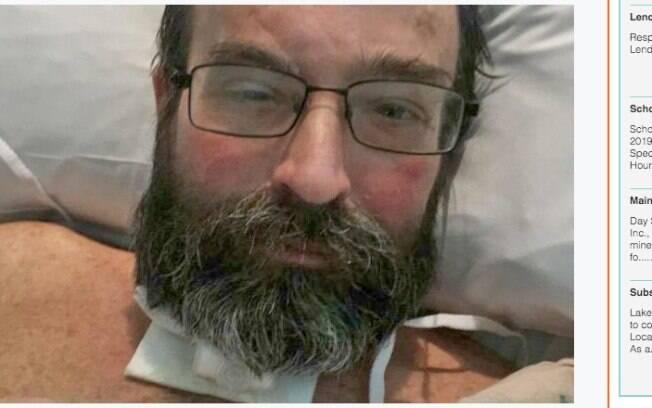 Scott Donahue quase morreu após contrair blastomicose, doença que havia levado seu cachorro a óbito em 2018