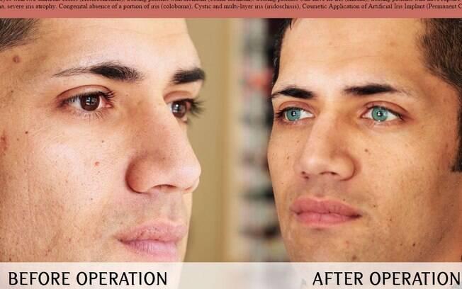 Implante ocular para mudar cor dos olhos pode causar glaucoma e cegueira. Foto: Reprodução / Dr. Shibu Varkey