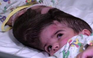 Irmãs siamesas de dois anos unidas pelo crânio são separadas com sucesso