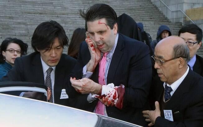 Mark Lippert tenta conter sangramento enquanto é encaminhado a hospital na capital sul-coreana