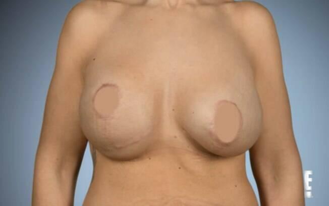 Segundo profissional é importante fazer uma pesquisa antes de cirurgia plástica para evitar procedimentos de reparo