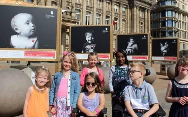 Retratos e histórias de crianças com doenças raras atendidadas por hospital na Inglaterra são exibidas em exposição