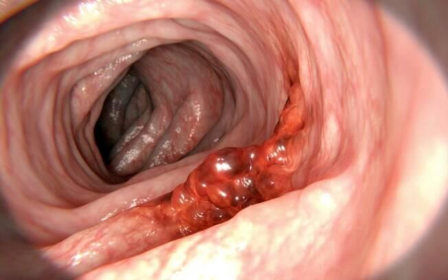 No câncer colorretal os tumores podem aparecer na extremidade inferior do trato digestivo